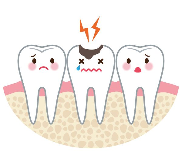 Should I See An Emergency Dentist For A Chipped Tooth?
