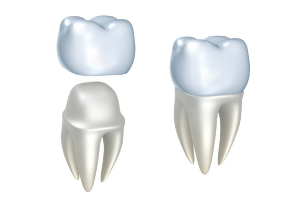 When Are Dental Crowns Used?