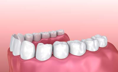 Do Dental Crowns Need To Be Replaced?