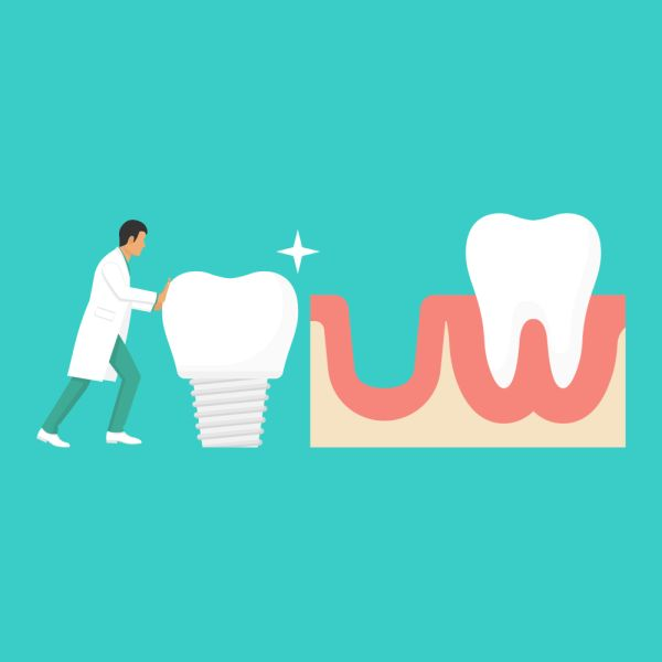 Reasons To Consider Dental Implants To Replace Missing Teeth