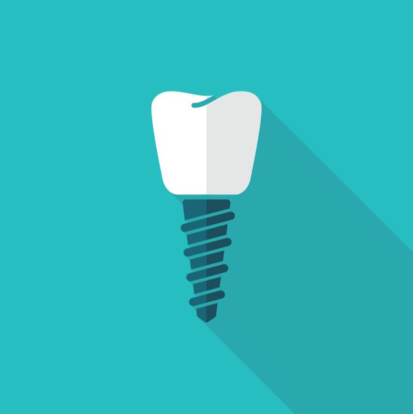 How Long Does A Dental Implant Artificial Root Last?