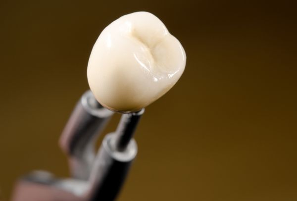 How To Take Care Of Your Dental Crowns